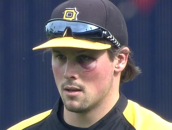travis-snider-black-eye-pirates